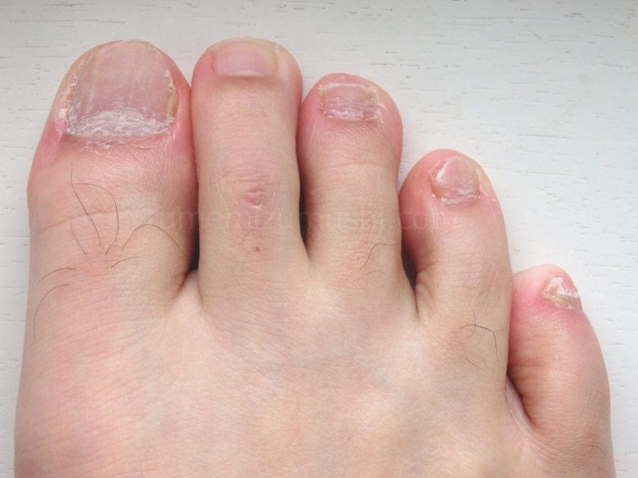 数年放置した爪水虫