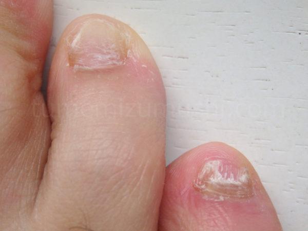 重症の爪水虫